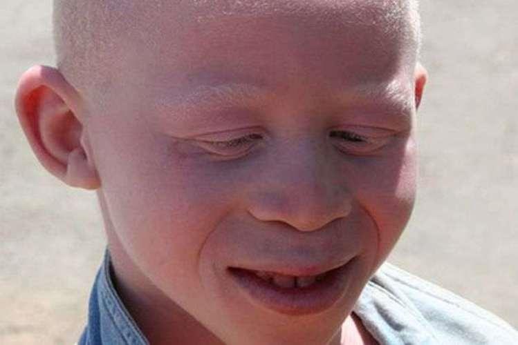 Governo aprova medidas para proteger albinos