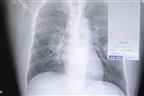 Homem hospitalizado com infeção pulmonar por cheirar meias