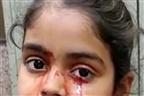 Menina indiana chora lágrimas de sangue