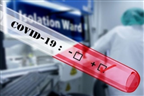 Coronavírus causa 17ª morte no país